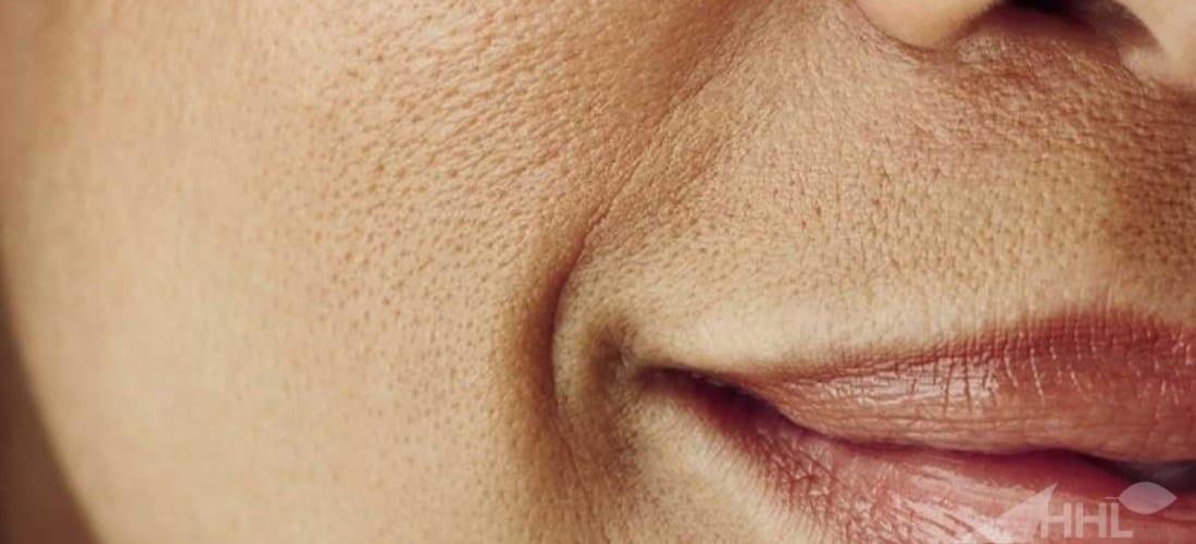 علاج مسامات البشرة