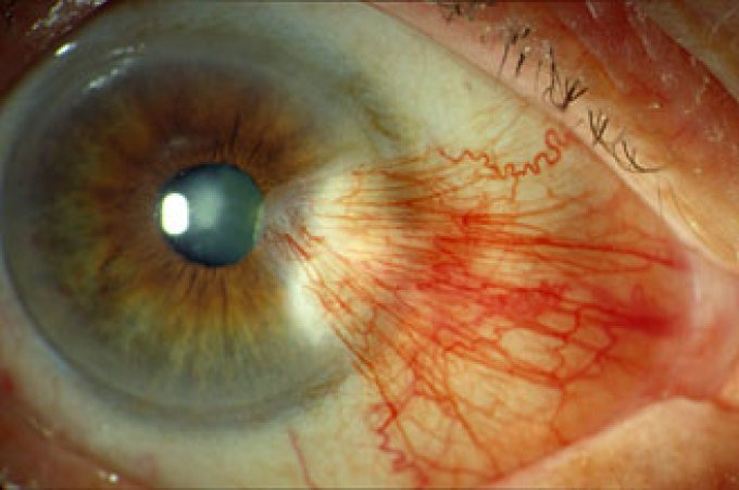 تراكم البروتين في العيون