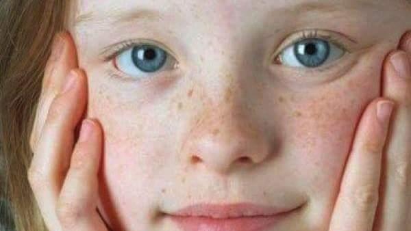 وصفات طبيعية فعالة لإزالة النمش من الوجه