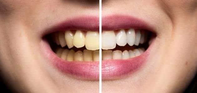 صورة كيفية جعل الأسنان بيضاء بطريقة صحيحة