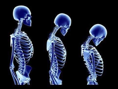 Photo of أسباب وأعراض مرض هشاشة العظام