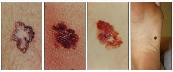 سرطان الجلد