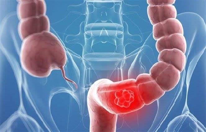 صورة الدهون تزيد من خطر الإصابة بسرطان القولون والمستقيم