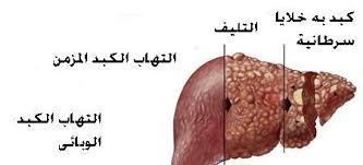 أعراض مرض الكبد