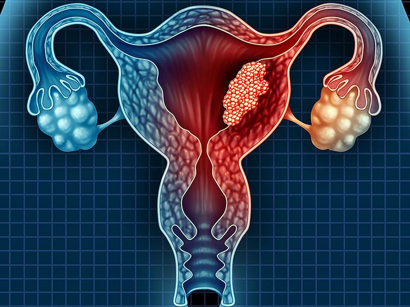 ما لا تعرفه عن سرطان بطانة الرحم
