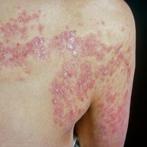 الامراض الجلدية الشائعة وانواعها