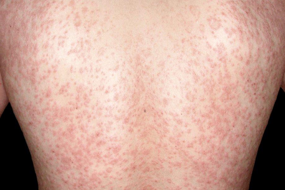 الامراض الجلدية الشائعة