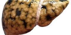 طريقة ازالة دهون الكبد طبيعيا