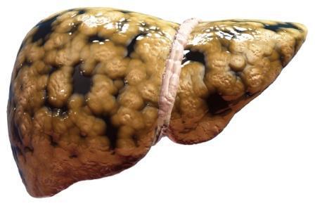 ازالة دهون الكبد