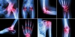 اعراض وعلاج الامراض الروماتيزمية