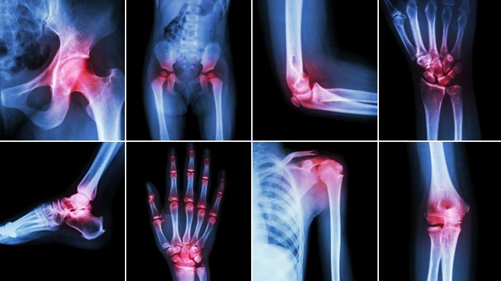 Photo of اعراض وعلاج الامراض الروماتيزمية