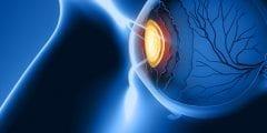 اعراض التهاب العيون وعلاجه