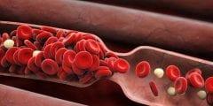 اعراض وانواع الجلطة الدموية