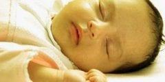 اعراض واسباب اليرقان عند الاطفال وعلاجه