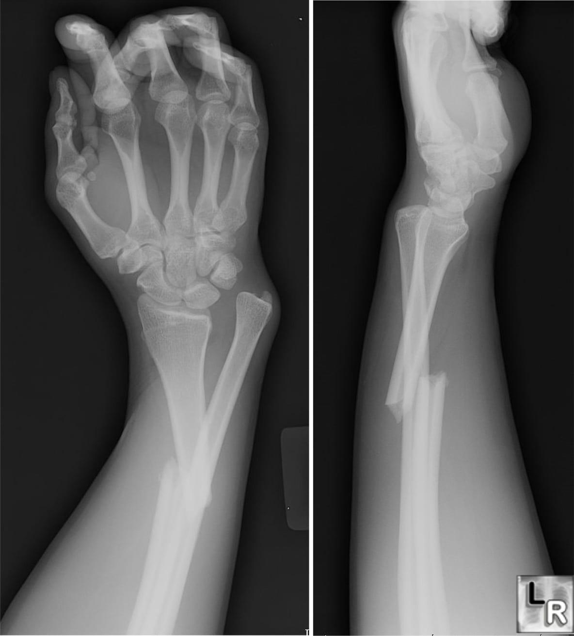 صورة انواع كسور العظام وعلاجها