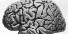 ما هو ترنح المخيخ في الدماغ واسبابه واعراضه