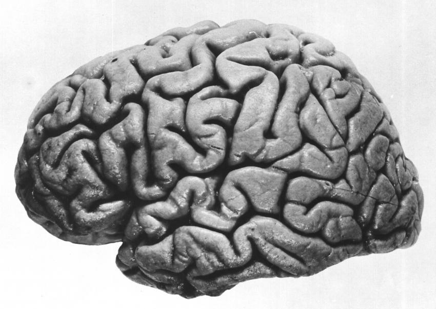 Photo of ما هو ترنح المخيخ في الدماغ واسبابه واعراضه