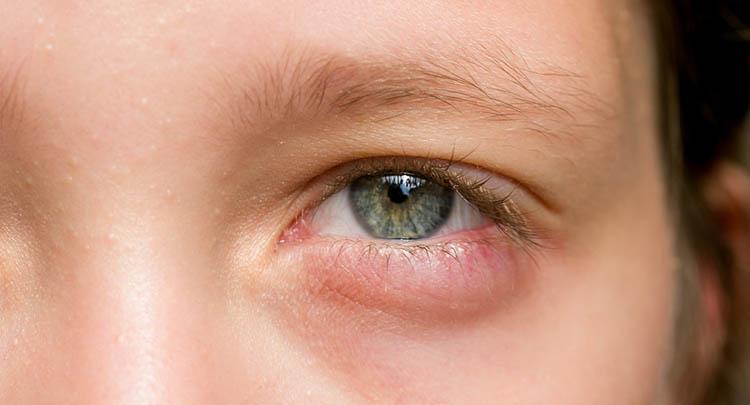 تورم جفن العين