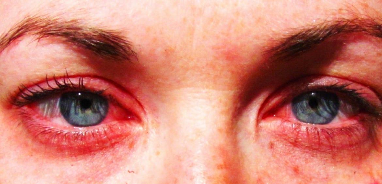 حرقان العين