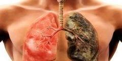 خطورة دخان التبغ على صحة الانسان