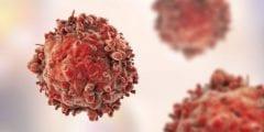 اسباب و اعراض سرطان الدم و علاجة
