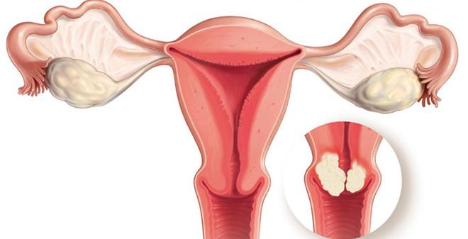 Photo of سرطان الرحم واعراضه وعلاجه