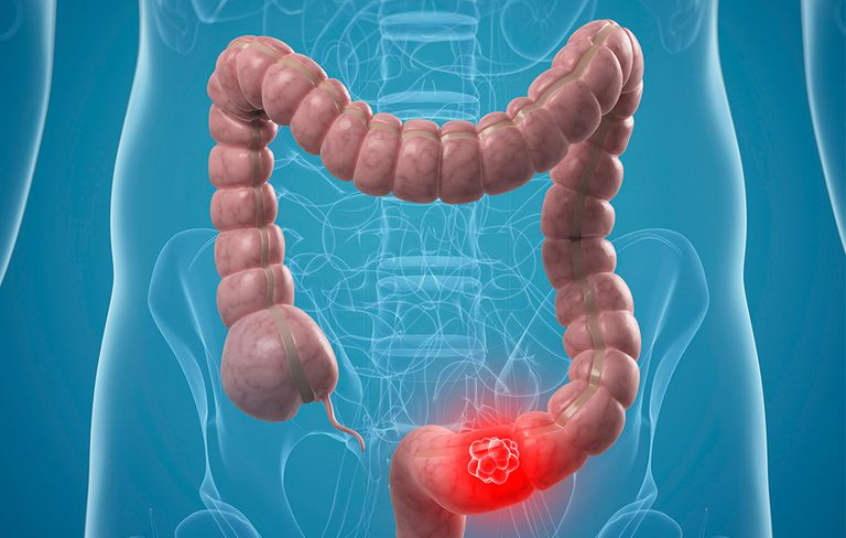صورة اسباب واعراض سرطان القولون