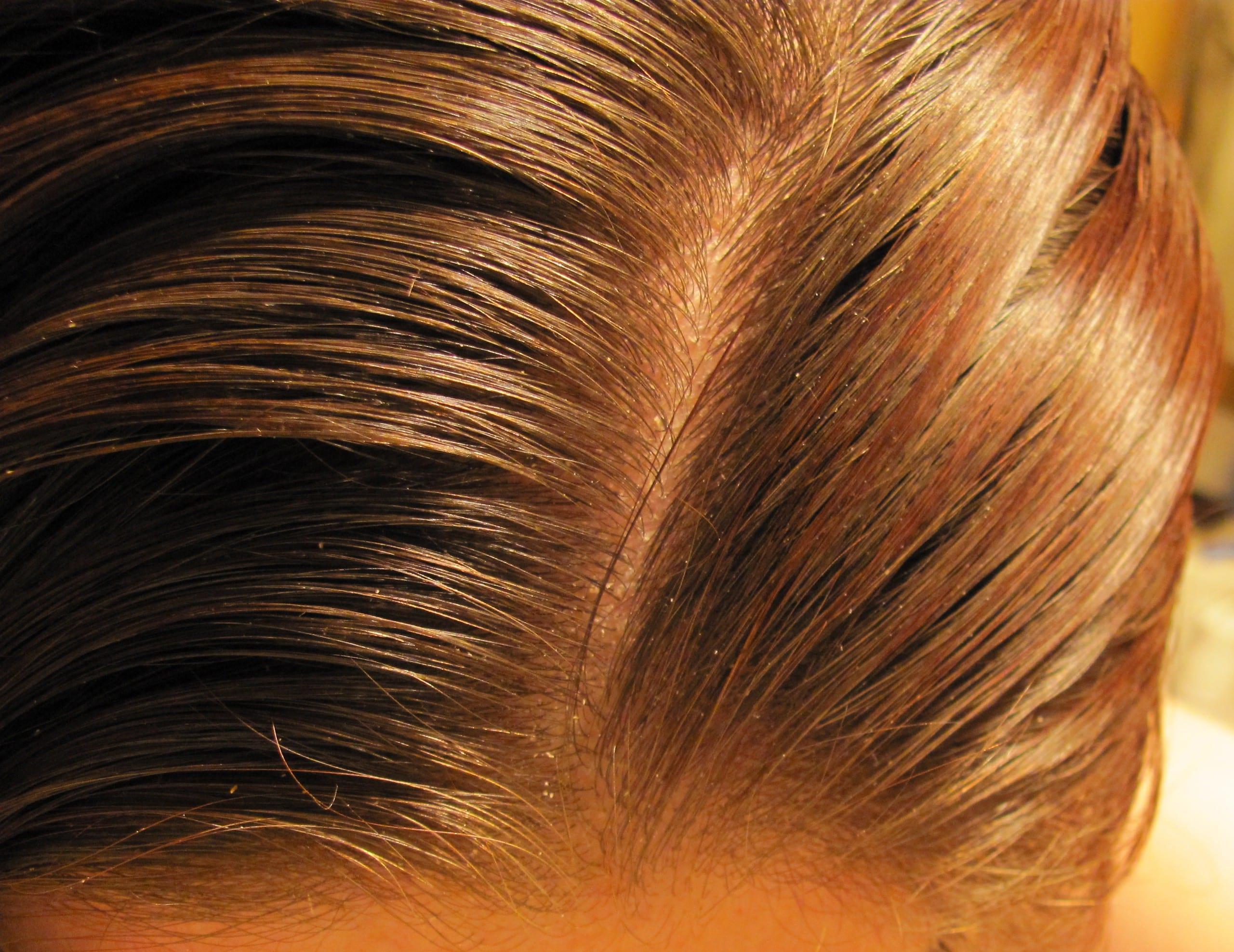 Photo of صبغ الشعر بالكركم بطريقة طبيعية