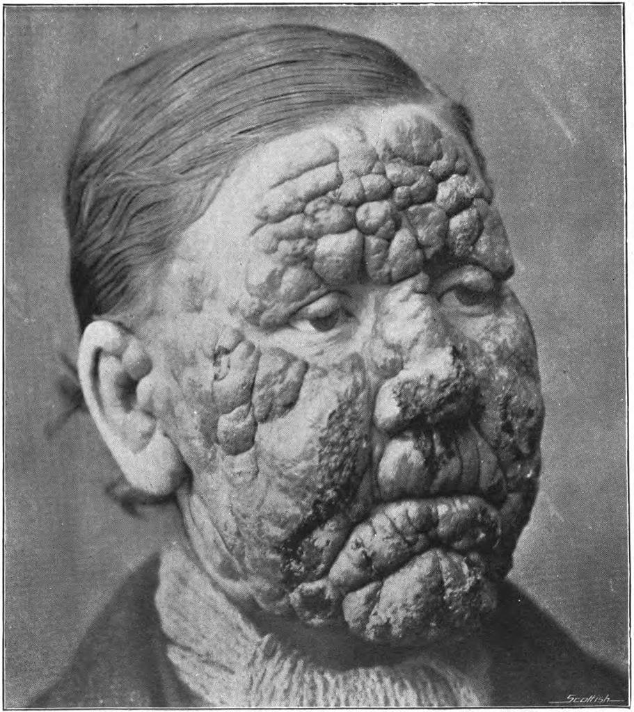 مرض الجذام