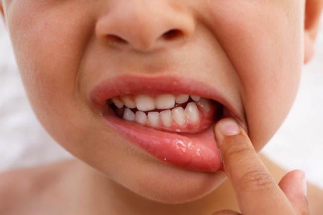 نقص الكالسيوم في الاطفال