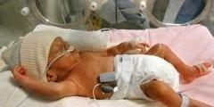 أعراض الولادة المبكرة ونصائح هامة لتجنب مخاطرها
