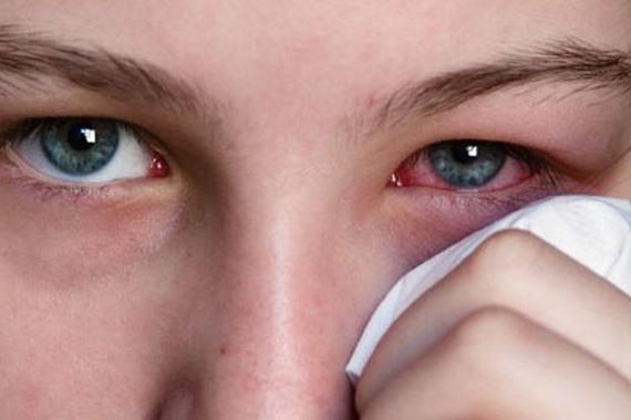 Photo of أهمها كسل العين.. أنواع أمراض العيون وكيفية علاجها والوقاية منها