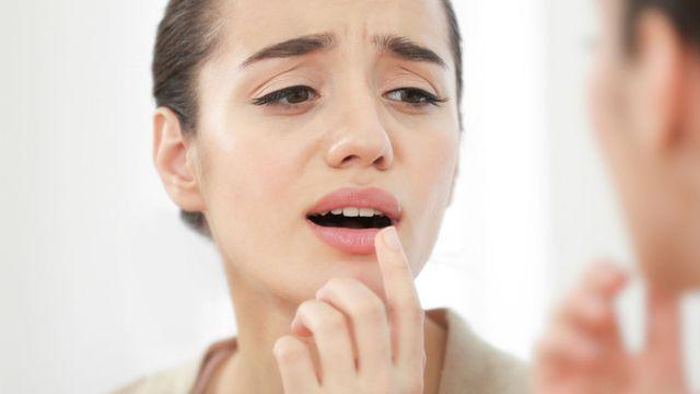 صورة أسباب قرحة الفم وكيف تتخلص منها بطرق منزلية بسيطة
