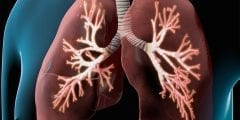 ماهو انسداد الرئة وأعراضه وأساليب الوقاية منه