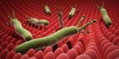"""ماهي البكتيريا المسببة لـ"""" جرثومة المعدة """" وماهي أعراضها؟"""