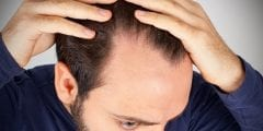 مرض سعفة الرأس .. الأسباب والعلاج وطرق الوقاية
