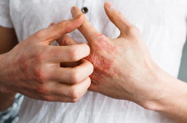 Photo of أنواع الإكزيما ومخاطر الإصابة بها.. ووسائل العلاج