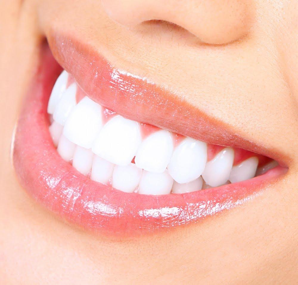اسنانك بيضاء