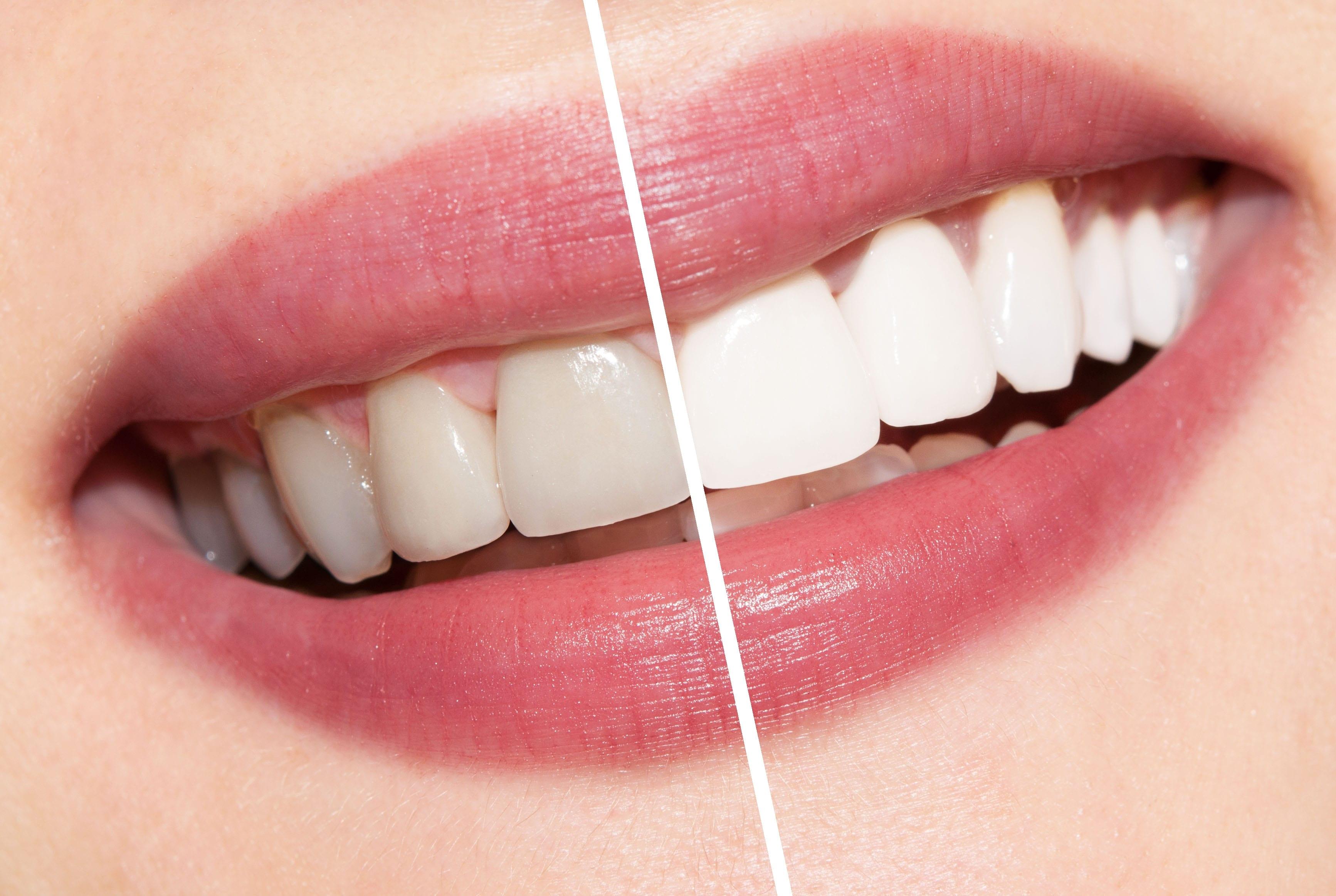 Photo of كيفية الحصول على اسنان بيضاء