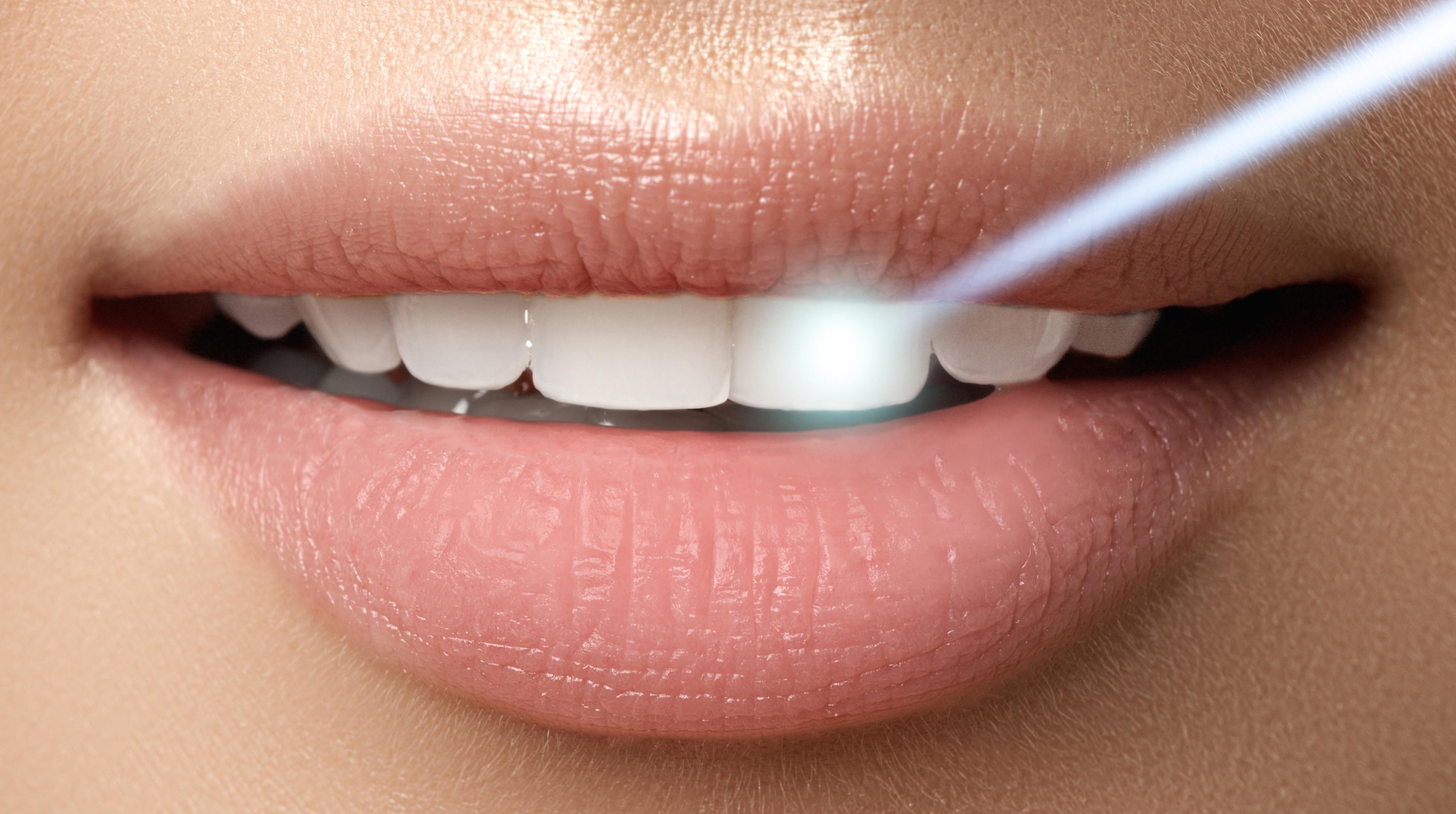 انظمة تبييض الاسنان