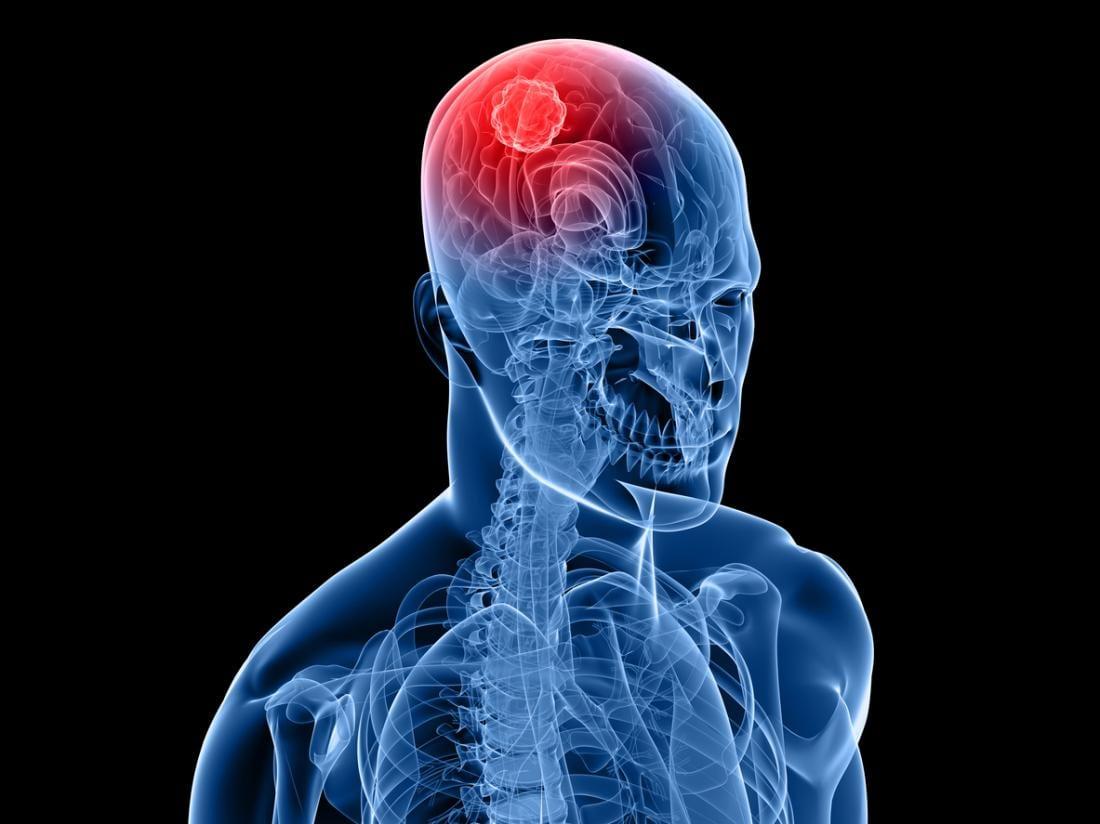 صورة انواع جميع السرطانات التي تصيب الانسان
