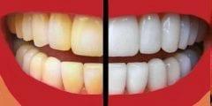 تبييض الاسنان باستخدام الطبيعة