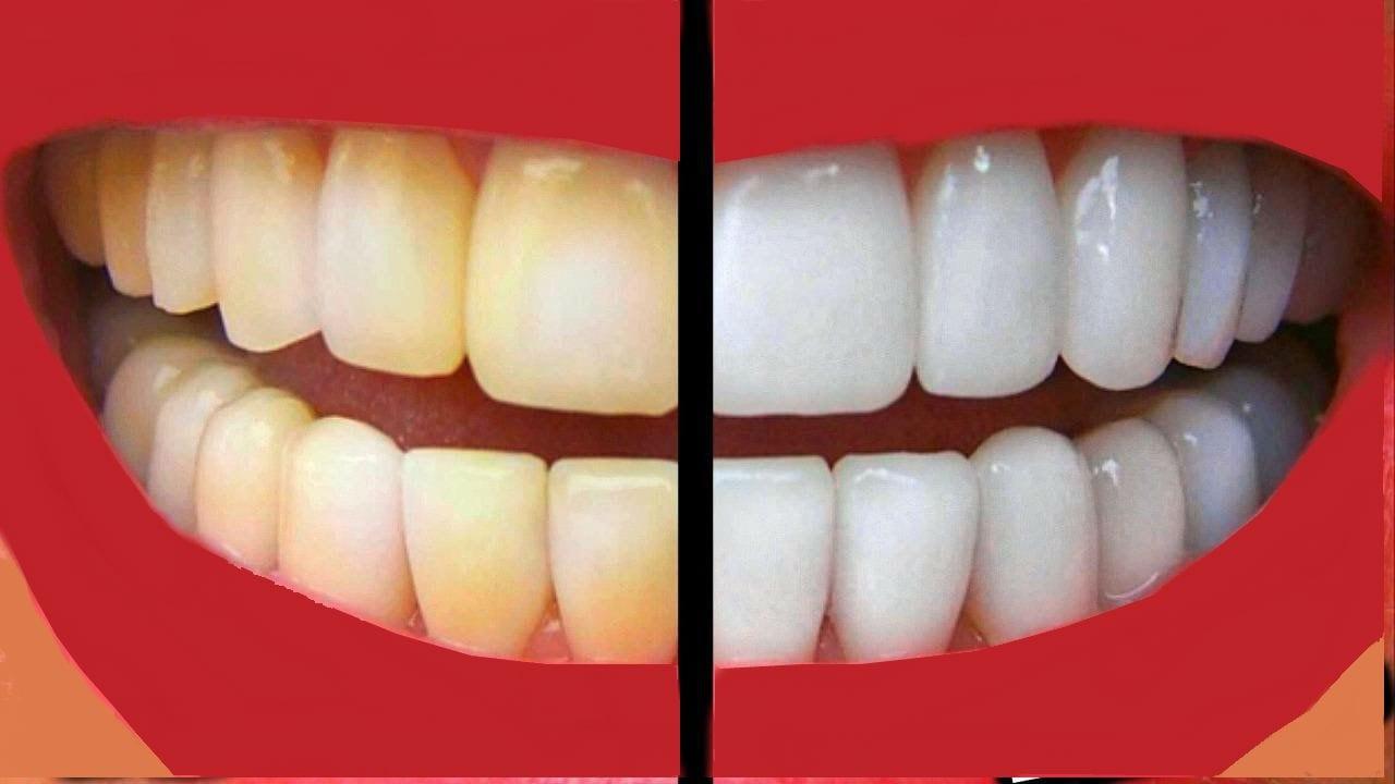 صورة تبييض الاسنان باستخدام الطبيعة