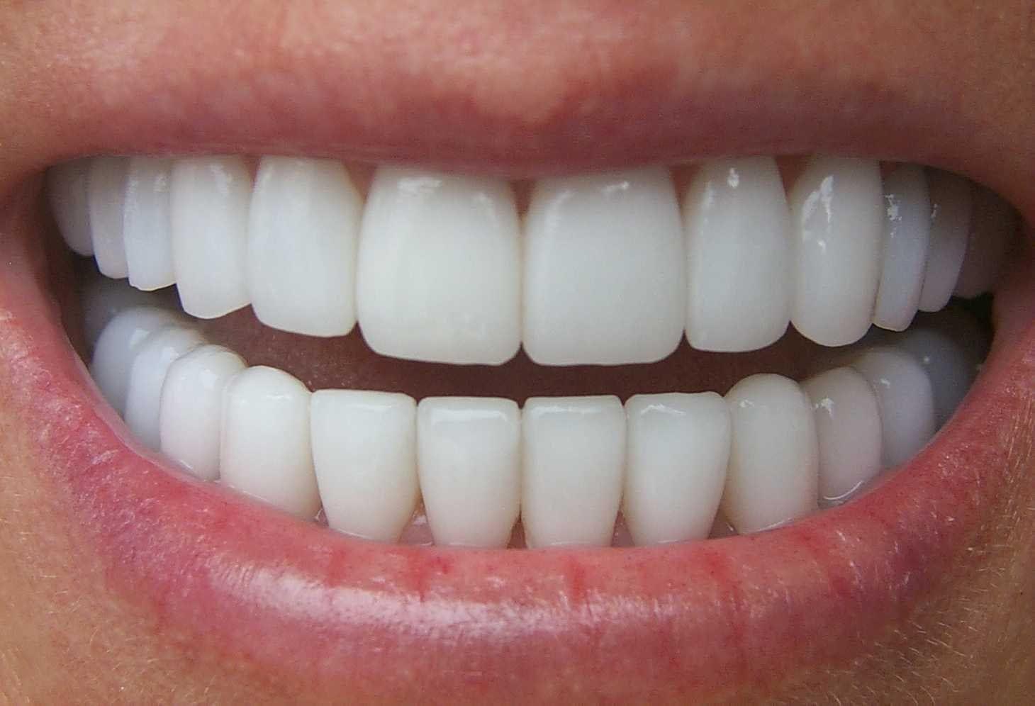 طرق سهلة جدا تبيض الاسنان