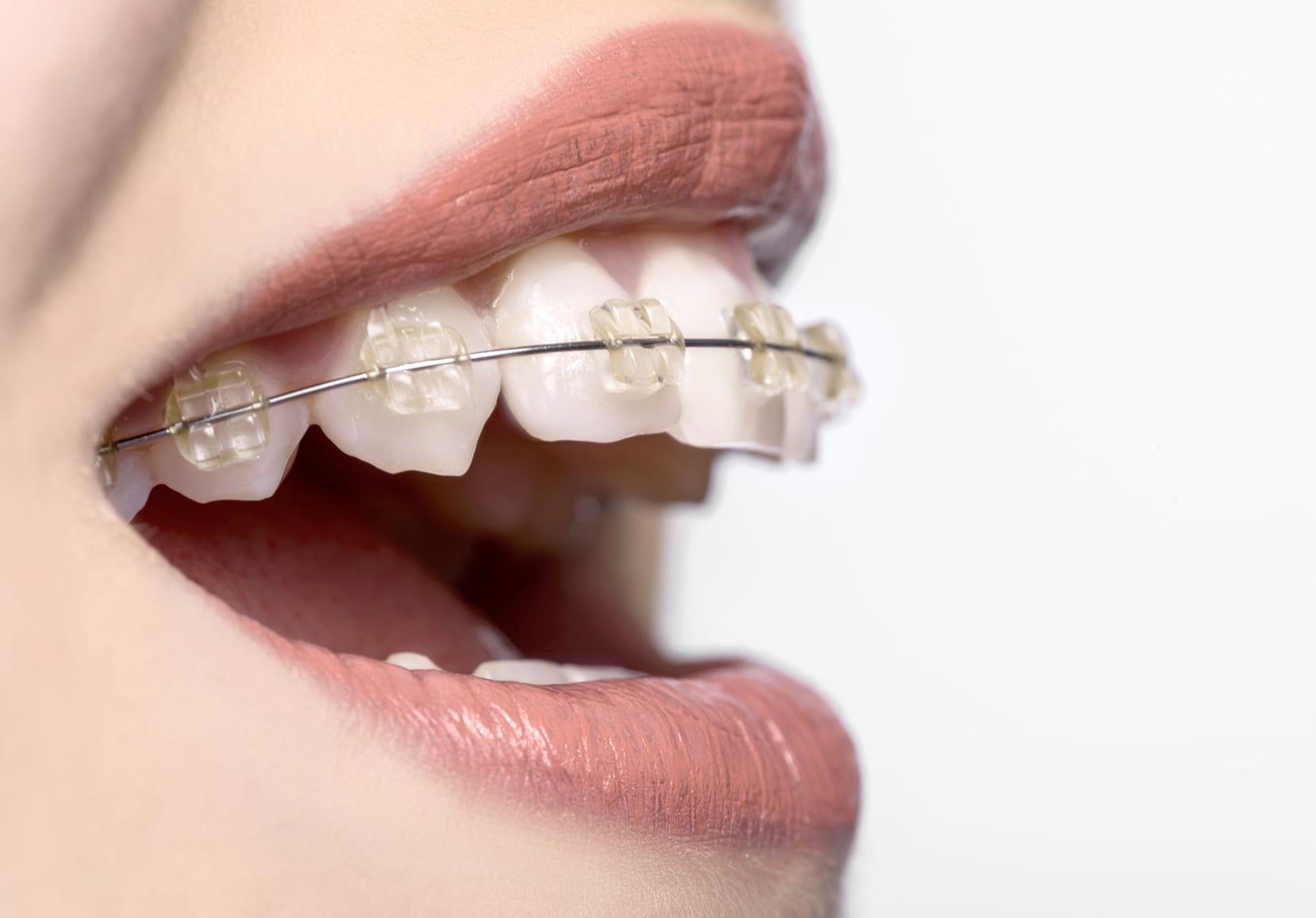 علاج تقويم الاسنان