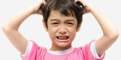 اسباب قشرة الشعر في الاطفال وعلاجها