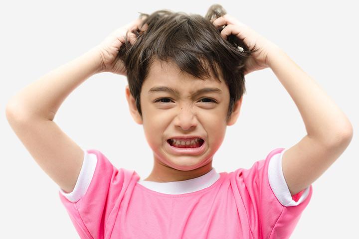قشرة الشعر في الاطفال