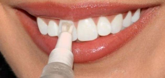 Photo of أسباب عملية برد الأسنان وأضرار خطيرة تنتج عنها