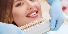 ما هو تلبيس الأسنان وأهميته وإجراءت ما بعد العملية