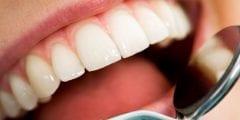 أسباب حدوث تجويف الأسنان ونصائح هامة للوقاية منه